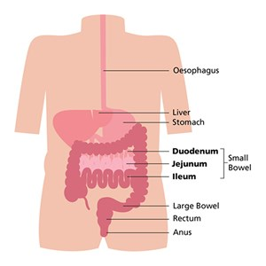 Small bowel cancers